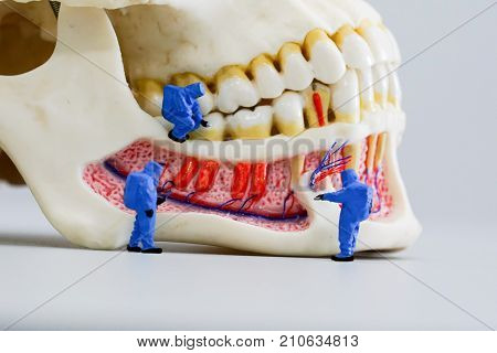 Miniature people scientist at work with dental tooth model