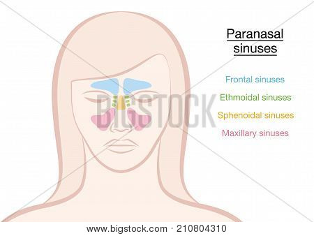 Paranasal sinuses on a womans face in different colors - frontal, ethmoidal, sphenoidal and maxillary sinuses. Isolated vector illustration on white background.