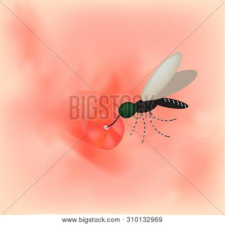 Mosquito Bite On The Skin. World Mosquito Day. Vector Illustration On Isolated Background.