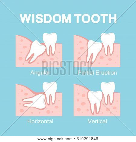 Abnormal Eruption Of Wisdom Tooth. Dental Problems
