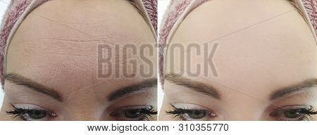 Female Forehead Wrinkles Before And After Treatment