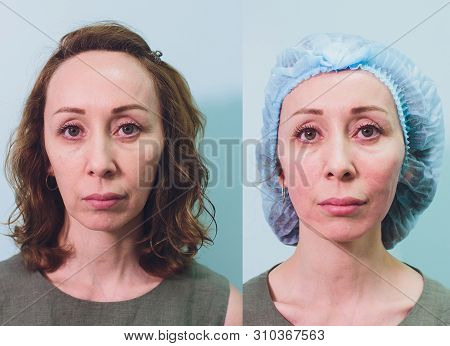 Aged Woman Doing Mesothreads And Thread Lifting, Cosmetology. Cosmetic Procedure To Eliminate Signs