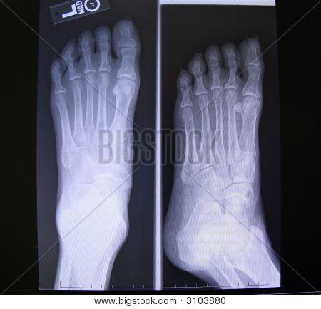 Foot X-Rays