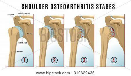 Shoulder Osteoarthritis Stages Infographic. Realistic Bones Scheme. Joint Pain. Editable Vector Illu