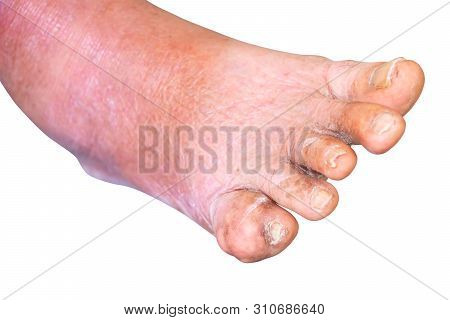 Gout Foot Little Finger In Aged People Close Up On White Background