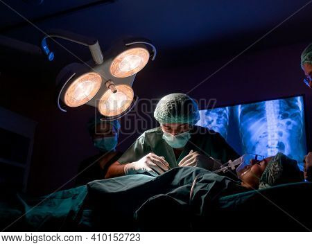 Wide Shot Of Operating Doctor Work On Operation Of Patient With His Staff Stand To Support Near Him