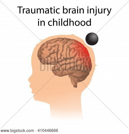 Tbi. Traumatic Brain Injury In Childhood. Kid, Child Head Damage.