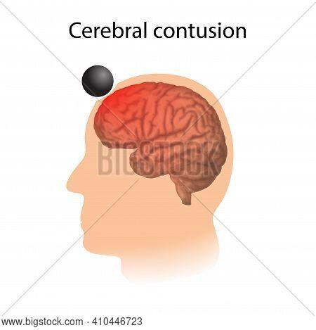 Tbi. Cerebral Contusion. Man, Human Head Damage.
