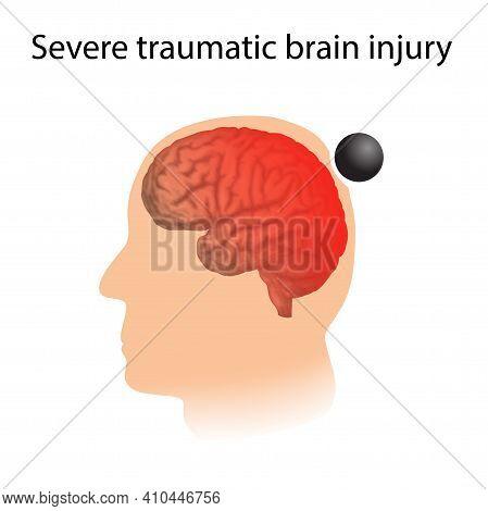 Tbi. Severe Traumatic Brain Injury. Head Damage.
