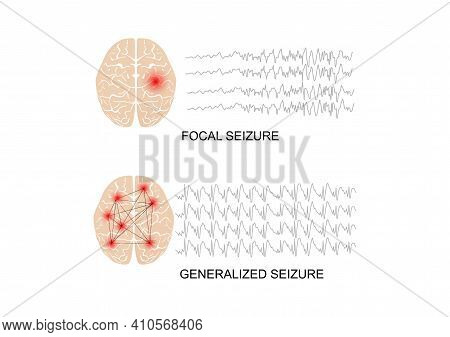 Vector Illustration Of Seizure Types Demonstrating By Onset And Brain Waves. Focal Seizure And Gener