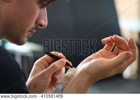 Abrasions On The Palm And Scratches On The Right Arm Of An Adult Man. Home Treatment. Self-removal O