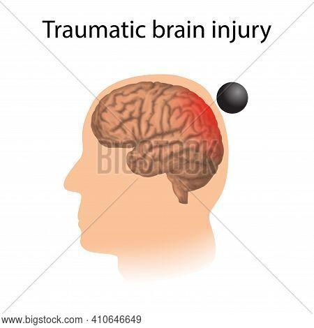 Tbi. Traumatic Brain Injury. Man, Human Head Damage.