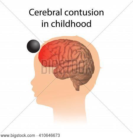 Tbi. Cerebral Contusion In Childhood. Kid, Child Head Damage.