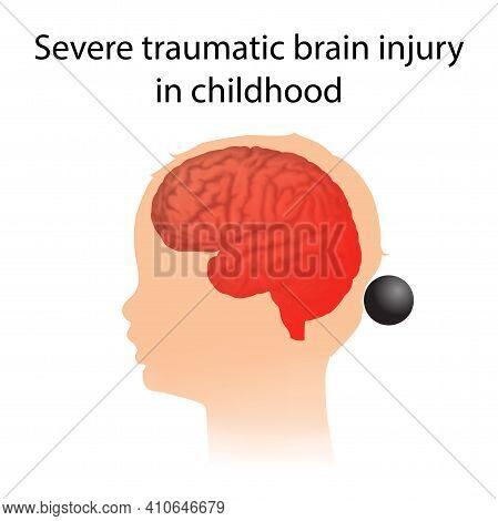 Tbi. Severe Traumatic Brain Injury In Childhood. Kid, Child Head Damage.