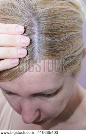 A Blond Woman Inspecting Her Hair, Hair Loss, Alopecia And Hair Treatment Concept