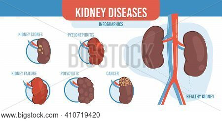 Vector Flat Cartoon Infographic, Healthy Kidneys And List Of Diseases-human Internal Organs Diagnost