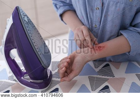 Woman With Burn On Her Forearm Near Ironing Board At Home, Closeup