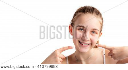 Close Up Of A Teenage Girl Smiling In Orthodontic Brackets. Girl With Braces On Teeth.