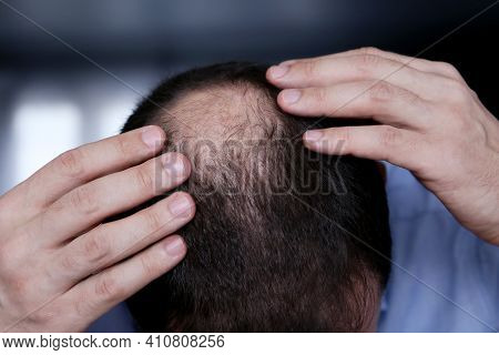 Baldness, Man Concerned About Hair Loss. Male Head With A Bald, Selective Focus On Hand