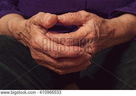 Old Caucasian Woman Hands. Close Up. Hard Life Of Old People. Old Age Illnesses. Veins And Skin Pigm