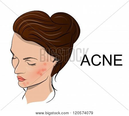 the young womans face with acne. vector poster