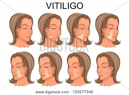 illustration of a female face with spots of vitiligo