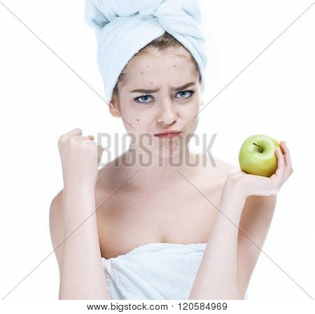 Girl with a pimply face holding apple.