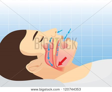 Anatomy of human airway while snoring