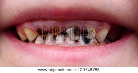 cavities on teeth of the child