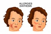 illustration of the face of a child suffering diathesis or Allergy poster