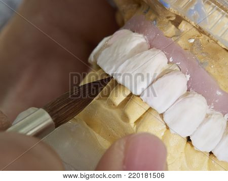 Technician dental is working with complete lower and upper metal ceramic prosthesis dental