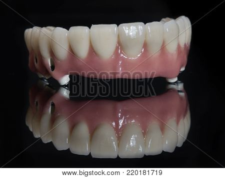 Complete lower and upper metal ceramic prosthesis dental screwed directly to implant.