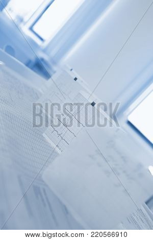 Bended ECG paper on the doctor's table against the window.