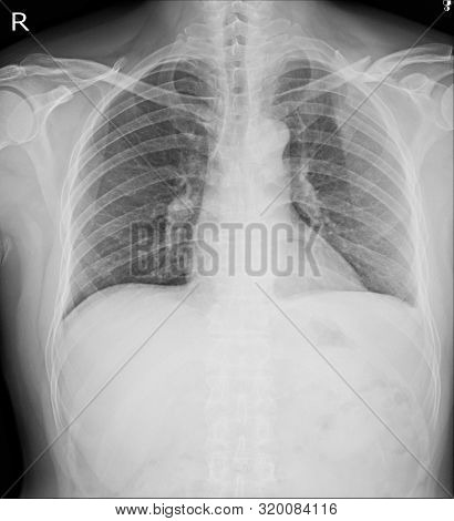 Chest X-ray Fractures Left Clavicle, Anterior 2nd Rib, Posterior Rib 4,5  And Lateral Aspect Of Left
