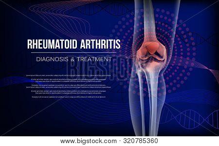 Rheumatoid Artritic Sore Joints Concept. Realistic Bones Of Knee Skeleton, Human Leg. Horizontal Dar