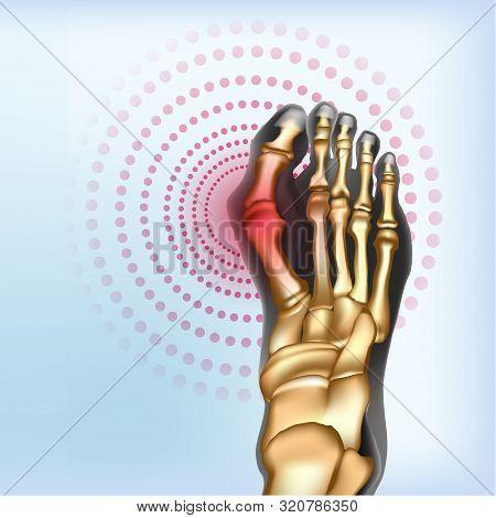 Bunion Foot Deformation. Sore Joints Concept. Realistic Bones Of Foot Skeleton Of Human Leg. Llight