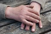 Fungus Infection on Nails Hand elderly man poster