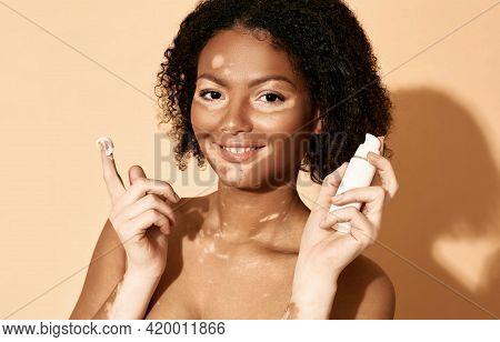 Face Cream Moisturizing Skin. Positive African American Woman With Vitiligo Applies Moisturizing Cre