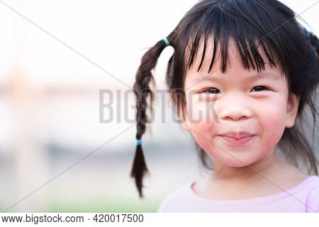 Closeup, Cute Asian Girl Sweet Smile. Little Kid Lips Peeled And Dehydrated From Drinking Less Water