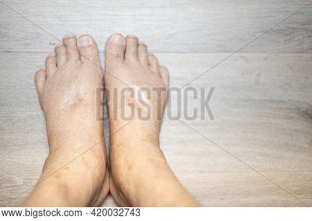 The Feet Of Old Man Wrinkle Skin Swollen Feet With The Cancer And The Body Lack Of The Protein For H