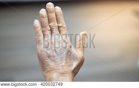 Close-up Of The Wrinkled Hands Of An Elderly Man.