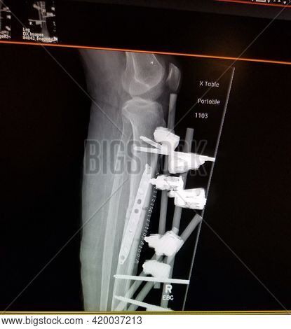 Right Tibial Fracture With Internal Fixation Hardware