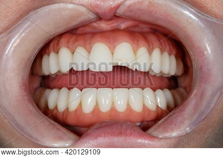Dentistry Of Teeth Before Treatment. Close-up Photo Of Teeth. Image Of Teeth Whitening. Treatment Pl