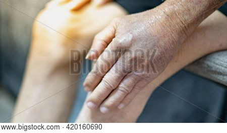 The Hand Of Old Man With The Wrinkled Hand And Bruised From The Body Lack Of Nutrition Protein.