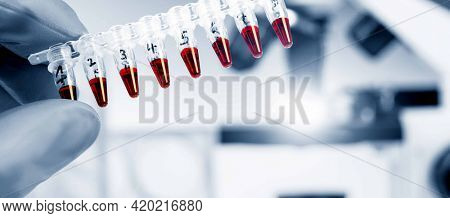 Tubes with genetic samples immunological research in the laboratory, test tubes and pipette