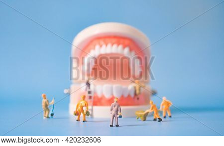 Miniature Workers Clean And Correct The Tooth Model On A Blue Background. Dental Examination Concept