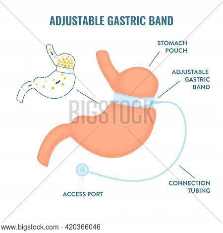 Adjustable Gastric Band Bariatric Surgery Weight Loss Infographics