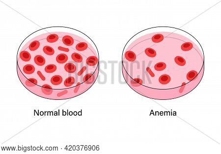 Normal Blood And Specimen With Anemia Disease. Human Blood Cells Structure. Thrombocytes, Leukocytes