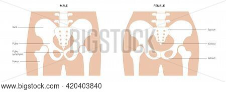 Comparison Of The Structure Of Male And Female Pelvis. Anatomical Poster Of Human Skeleton. Pelvic B