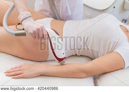 Woman On Laser Epilation Procedure. Hardware Removal Of Unwanted Vegetation On Hands